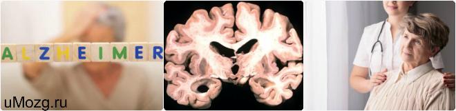 Предеменция. Альцгеймера симптомы
