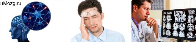 Факторы и препараты для лечением атеросклероза сосуда головного мозга