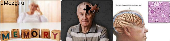 поиск в болезни альцгеймера симптомов
