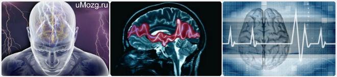 Причины эпилептических припадков