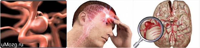 Симптоматика аневризмы головного мозга
