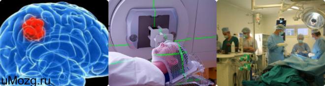анализ на опухоль мозга