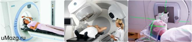 Причины назначения радиотерапевтических мер