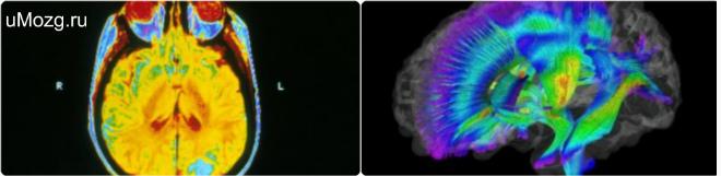 трактография головного мозга