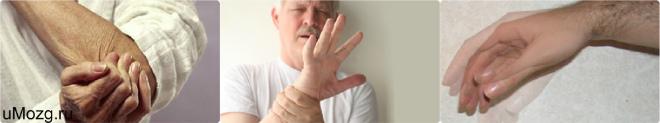 Рука трясется при напряжении
