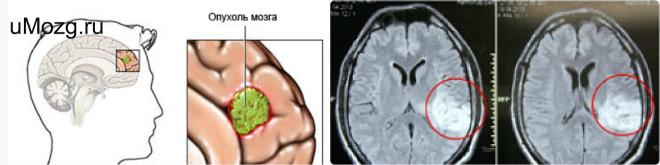 лечить опухоль головного мозга операция