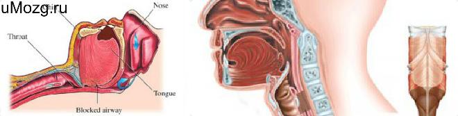 Симптоматика и типы апноэ