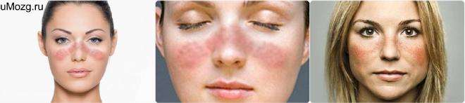 Заболевание системной красной волчанкой симптомы и лечение