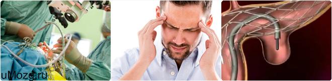 Симптоматика аневризмы