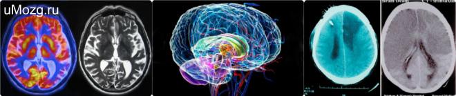 Сложности и проведения операции по пересадке мозга