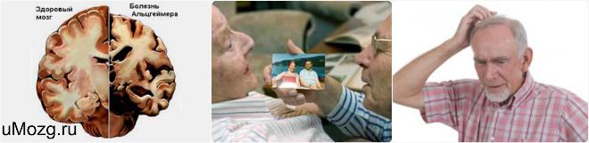 Ранняя деменция