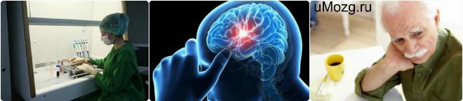 диагноз дисциркуляторная энцефалопатия .гипертензивный