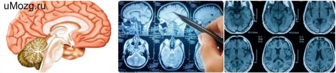острая ишемия головного мозга
