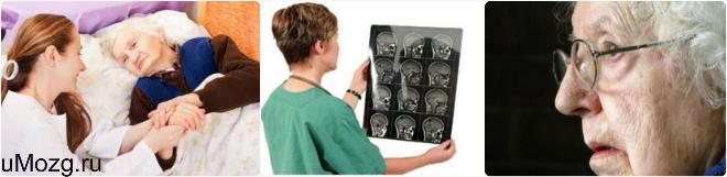 Диагностика болезни Альцгеймера