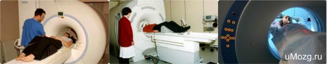 головного мозг томография