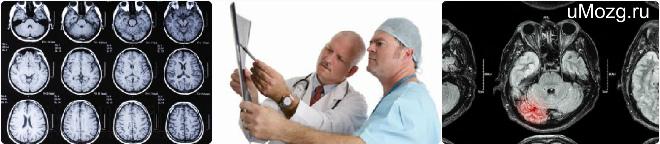 Субдуральная гематома мозга лечение