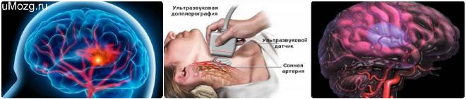 ишемическая болезнь сосудов головного мозга , ишемия глаза