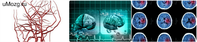 причины ишемии головного мозга , ишемия глаза