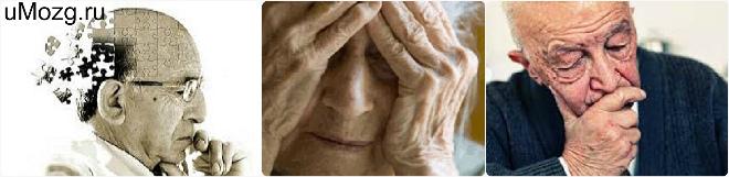 Умеренная деменция