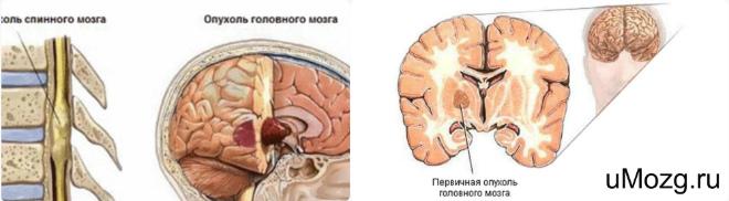 реабилитация после удаления опухоль головной мозг