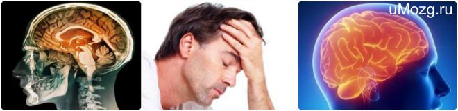 энцелофапатия головного мозга , последствия