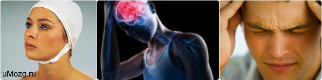острая черепно мозговая травма