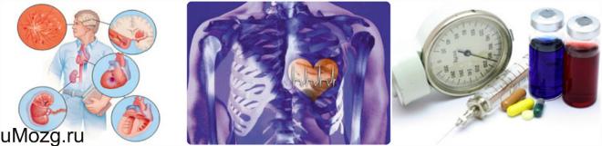 виды артериальной гипертензии