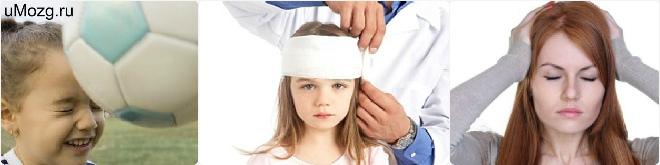 Лечение черепно мозговой травмы