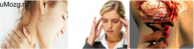 Причины ВСД и шейного остеохондроза