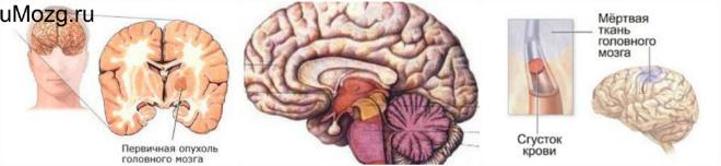 Поражения в головном мозге