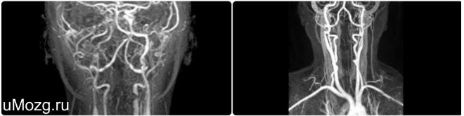 Показания и противопоказания к проведению диагностики