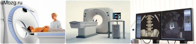спиральная томография