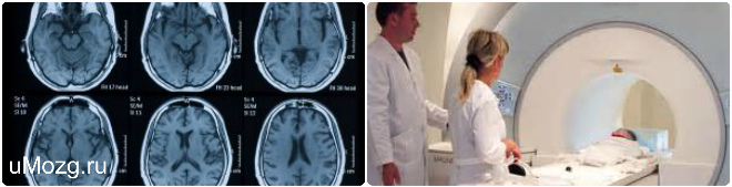 Анализирование МРТ