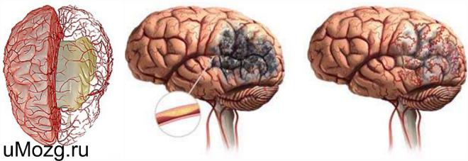 ЦВЗ головного мозга
