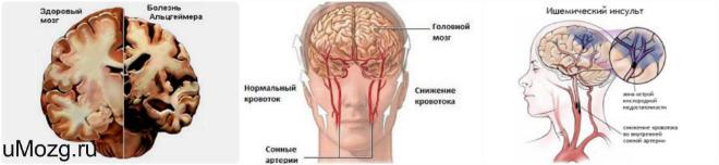 Дистрофические расстройства головного мозга делятся на два вида