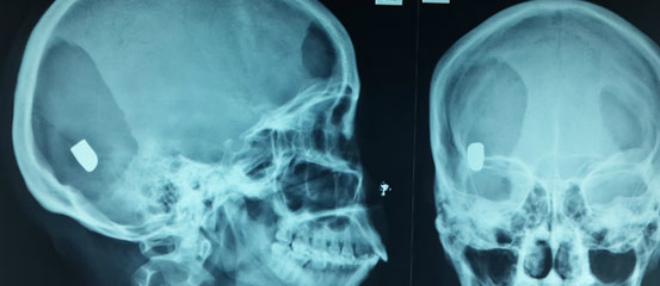 Суть рентгенологического исследования