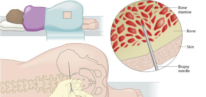Трепанобиопсия как вид пункции