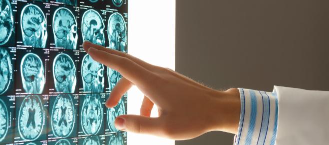 Виды рентгеновского исследования