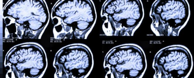 снимок мозга
