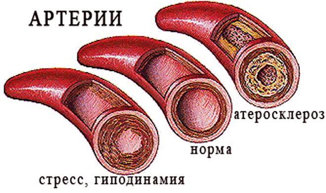 Биомаркеры в атеросклерозе