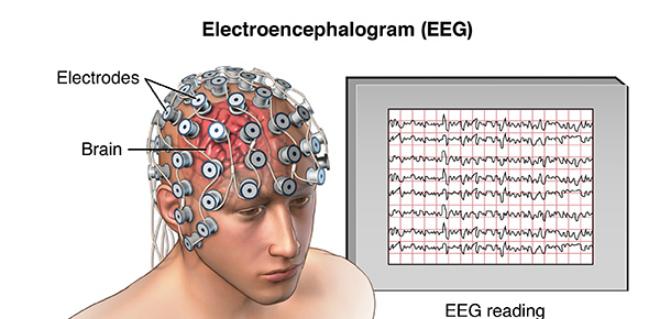 Подготовка к исследованию ЭЭГ