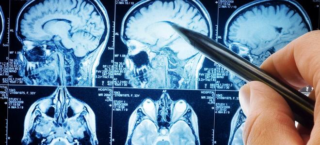 исследования мозга человека