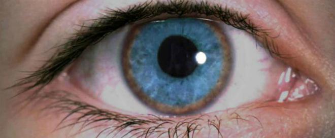 гепатоцеребральная дистрофия болезнь вильсона коновалова