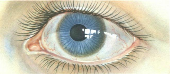 болезнь вильсона коновалова диагностика