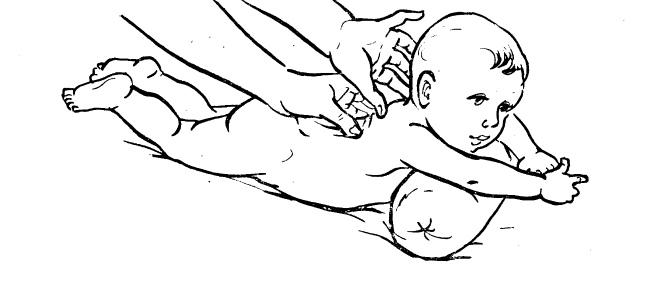 Послеродовой (акушерский) парез у новорожденных