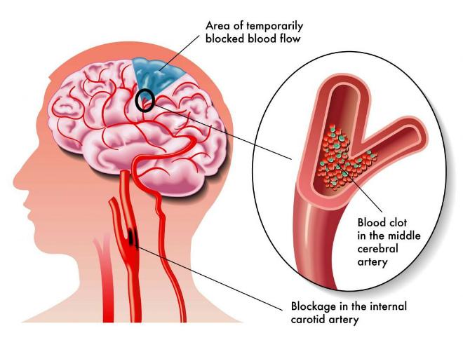 лечение атеросклероза головного мозга