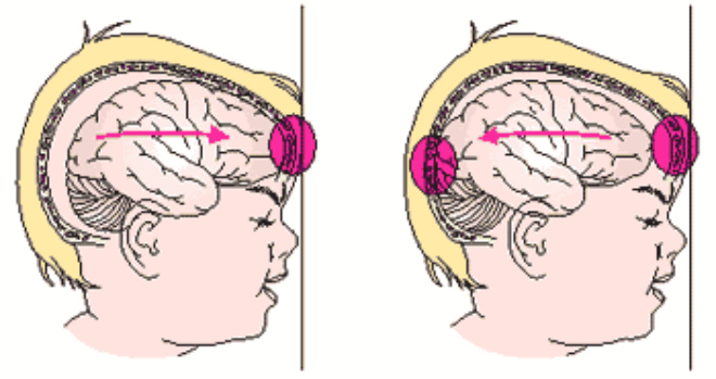 Сотрясение мозга от удара головой об голову