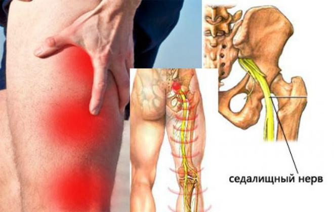 защемление седалищного нерва симптомы и медикаментозное лечение
