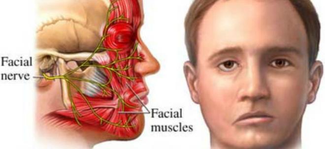 Чем лечить воспаление лицевого нерва в домашних условиях 4