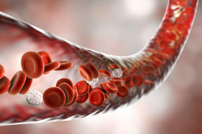 Системная склеродермия